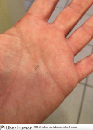 failnation:  I coughed up a staple from a lung lobectomy performed in August 2016.: 2013, sl no flying cars. Instead, blankets with sleeves. failnation:  I coughed up a staple from a lung lobectomy performed in August 2016.