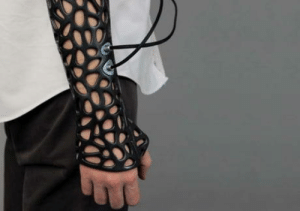Bones, Ultrasound, and Faster: 3-D printed cast uses ultrasound to heal broken bones 40% faster.