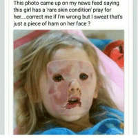 I Came: This photo came up on my news feed saying  this girl has a 'rare skin condition' pray for  her. ...correct me if I'm wrong but I sweat that's  just a piece of ham on her face