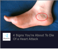 heart attack: 4 Signs You're About To Die  Of a Heart Attack  PhysioTru