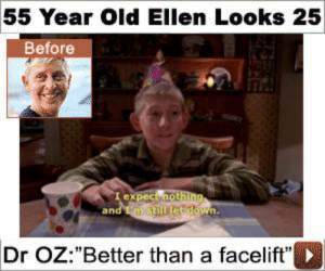 "Dr Oz, Ellen, and Old: 55 Year Old Ellen Looks 25  Before  I expect nothing  and mstill etdown.  Dr OZ:""Better than a facelift"" https://t.co/CRsVMp6gUe"