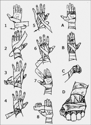 gold-from-straw:  angelicpaintbrush:  coelasquid:  thiocyanat:  coelasquid:  satanpositive:  How to tape up your hands before a fight  Useful reference?  Let's go beat someone up! But no seriously, does this prevent pain or something ? What do these bandages actually serve ?   It keeps your bones aligned to prevent injury, compresses soft tissue to make the fist more rigid, and pads the knuckles. Skull bones are sturdier than hand bones, and even if you know what you're doing there's a high risk of damaging your metacarpals if you punch someone barehanded. It's why they recommend if you find yourself in a fight unprepared to bunt their nose with the butt of your palm, because if the other person tucks their head and you end up hitting their forehead instead it'll do a lot less damage to your palm than your knuckles.  Tumblr teach'n you how to fucks someone's shit up.   I've never wrapped my hands for training, but yeah, if you punch even the tiniest wrong it hurts like hell (especially with hyper mobility). So yeah, heel of the hand is good! : 8  6  5  3  4 gold-from-straw:  angelicpaintbrush:  coelasquid:  thiocyanat:  coelasquid:  satanpositive:  How to tape up your hands before a fight  Useful reference?  Let's go beat someone up! But no seriously, does this prevent pain or something ? What do these bandages actually serve ?   It keeps your bones aligned to prevent injury, compresses soft tissue to make the fist more rigid, and pads the knuckles. Skull bones are sturdier than hand bones, and even if you know what you're doing there's a high risk of damaging your metacarpals if you punch someone barehanded. It's why they recommend if you find yourself in a fight unprepared to bunt their nose with the butt of your palm, because if the other person tucks their head and you end up hitting their forehead instead it'll do a lot less damage to your palm than your knuckles.  Tumblr teach'n you how to fucks someone's shit up.   I've never wrapped my hands for training, but yeah, if you punch even the tiniest wrong it hurts like hell (especially with hyper mobility). So yeah, heel of the hand is good!