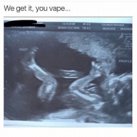 We get it, you vape.  ci 5.0/08  MI 0.9  18 zom/22/14Hr Tub o 1  FOOT  CoroMont Perinotal  08/25/2015 00 4501A  PROFILE These vape posts are getting out of hand 😭 rp- Help get @saltytweets to 30k! Go check them out ☝️