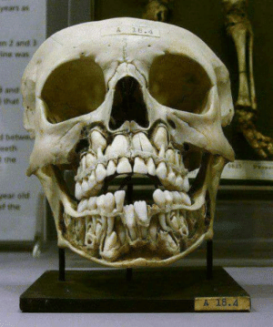 Skull, Baby, and Teeth: A 8  the  A 18.4 A childs skull before losing baby teeth