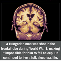 frontal lobe: A Hungarian man was shot in the  frontal lobe during World War 1, making  it impossible for him to fall asleep. He  continued to live a full, sleepless life.