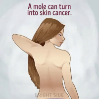 A Mole Can Turn Into Skin Cancer BRIGHT SIDE Take a Look
