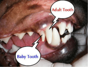 Toothing: Adult Tooth  Baby Tooth