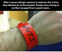 Hospital, Psych, and How: After a severe allergic reaction to walnuts, this is how  they labeled me at the hospital. People were staring at  me like l escaped from a psych ward...