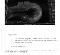 mri scan: AGITTAL 233916  49879  62389  630  509239  62389  056340  MRI VIRTUAL CAMERA  2 18.911  shadowofthelabyrinth:  meow-zaxaroula:  kingjaffejoffer  This is someone dying while having an MRI scan. Before you die, your  brain releases tons and tons of endorphins that make you feel a range of  emotions. Tragically beautiful.  #1 post in Tumblr history  THIS IS A GIF OF SOMEONE TURNING INTO A ZOMBIE FROM THE WALKING DEAD IM DONE  WITH THIS STUIPD ASS WEBSITE BY E