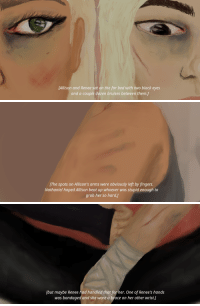 reneeewalker: the king's men - chapter fourteen: [Allison and Renee sat on the far bed with two black eyes  and a couple dozen bruises between them.)   [The spots on Allison's arms were obviously left by fingers.  Nathaniel hoped Allison beat up whoever was stupid enough to  grab her so hard.]   [but maybe Renee had handled that for her. One of Renee's hands  was bandaged and she wore a brace on her other wrist.] reneeewalker: the king's men - chapter fourteen
