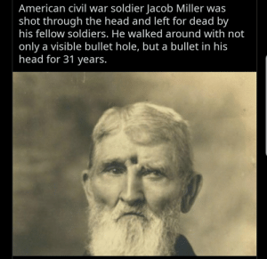 Head, Soldiers, and American: American civil war soldier Jacob Miller was  shot through the head and left for dead by  his fellow soldiers. He walked around with not  only a visible bullet hole, but a bullet in his  head for 31 years.
