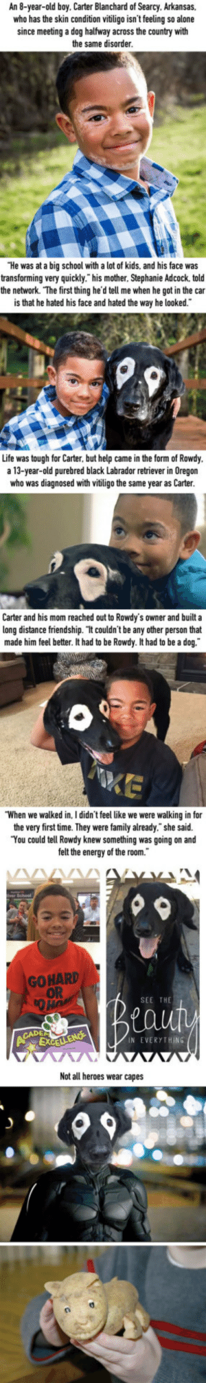 """Boy with vitiligo hate himself until he finds a buddy in dog with same condition: An 8-year-old boy. Carter Blanchard of Searcy. Arkansas,  who has the skin condition vitiligo isn't feeling so alone  since meeting a dog halfway across the country with  the same disorder  He was at a big school with a lot of kids, and his face was  transforming very quickly."""" his mother. Stephanie Adcock, told  the network. The first thing he'd tell me when he got in the car  is that he hated his face and hated the way he looked.  Life was tough for Carter, but help came in the form of Rowdy  a 13-year-old purebred black Labrador retriever in Oregon  who was diagnosed with vitiligo the same year as Carter  Carter and his mom reached out to Rowdy's owner and built a  long distance friendship. It couldn't be any other person that  made him feel better. It had to be Rowdy. It had to be a dog.  When we walked in. I didn't feel like we were walking in for  the very first time. They were family already."""" she said.  You could tell Rowdy knew something was going on and  felt the energy of the room.  hetgsaid  GOHARD  OR  SEE THE  N EVERYTHING  Not all heroes wear capes Boy with vitiligo hate himself until he finds a buddy in dog with same condition"""