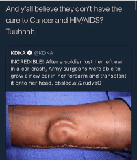 gas is so expensive i'm gonna start riding dick instead: And y'all believe they don't have the  cure to Cancer and HIV/AIDS?  Tuuhhhh  KDKA @KDKA  INCREDIBLE! After a soldier lost her left ear  in a car crash, Army surgeons were able to  grow a new ear in her forearm and transplant  it onto her head. cbsloc.al/2rudyaO gas is so expensive i'm gonna start riding dick instead