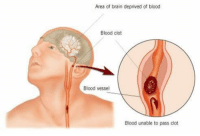 "Bad, Fail, and Fall: Area of brain deprived of blood  Blood clot  Blood vessel  Blood unable to pass clot <p><a href=""https://aven-rave.tumblr.com/post/173641187661/probablysupervillainrpgideas-turquoisemagpie"" class=""tumblr_blog"">aven-rave</a>:</p><blockquote> <p><a href=""https://probablysupervillainrpgideas.tumblr.com/post/173627234676/turquoisemagpie-cumbermums"" class=""tumblr_blog"">probablysupervillainrpgideas</a>:</p> <blockquote> <p><a href=""https://turquoisemagpie.tumblr.com/post/173547830749/cumbermums-blue-sunflowers"" class=""tumblr_blog"">turquoisemagpie</a>:</p> <blockquote> <p><a class=""tumblr_blog"" href=""http://cumbermums.tumblr.com/post/54412763335"">cumbermums</a>:</p> <blockquote> <p><a class=""tumblr_blog"" href=""http://blue-sunflowers.tumblr.com/post/54402528149"">blue-sunflowers</a>:</p> <blockquote> <p><a class=""tumblr_blog"" href=""http://kingdomkeeperstrivia.tumblr.com/post/23644781369"">kingdomkeeperstrivia</a>:</p> <blockquote> <p><a class=""tumblr_blog"" href=""http://animeaves.tumblr.com/post/22501511563"">animeaves</a>:</p> <blockquote> <p><a class=""tumblr_blog"" href=""http://hokarotsukino.tumblr.com/post/22476805096"">hokarotsukino</a>:</p> <blockquote> <p><a class=""tumblr_blog"" href=""http://mscaptains.tumblr.com/post/22445947999"">mscaptains</a>:</p> <blockquote> <p>STROKE: Remember The 1st Three Letters… S.T..R …<br/>My friend sent this to me and encouraged me to post it and spread the word. I agree. If everyone can remember something this simple, we could save some folks.<br/><br/>STROKE IDENTIFICATION:<br/>During a party, a friend stumbled and took a little fall - she assured everyone that she was fine and just tripped over a brick because of her new shoes. (they offered to call ambulance)<br/><br/>They got her cleaned up and got her a new plate of food - while she appeared a bit shaken up, Ingrid went about enjoying herself the rest of the evening. Ingrid's husband called later telling everyone that his wife had been taken to the hospital - (at 6:00pm , Ingrid passed away.)<br/>She had suffered a stroke at the party . Had they known how to identify the signs of a stroke, perhaps Ingrid would be with us today.<br/><br/>Some don't die. They end up in a helpless, hopeless condition instead. It only takes a minute to read this…<br/><br/>STROKE IDENTIFICATION:<br/><br/>A neurologist says that if he can get to a stroke victim within 3 hours he can totally reverse the effects of a stroke…totally. He said the trick was getting a stroke recognized, diagnosed, and then getting the patient medically cared for within 3 hours, which is tough.<br/><br/>RECOGNIZING A STROKE<br/><br/>Remember the '3' steps, STR . Read and Learn!<br/>Sometimes symptoms of a stroke are difficult to identify. Unfortunately, the lack of awareness spells disaster.<br/>The stroke victim may suffer severe brain damage when people nearby fail to recognize the symptoms of a stroke.<br/>Now doctors say a bystander can recognize a stroke by asking three simple questions :<br/><br/>S * Ask the individual to SMILE ..<br/>T * = TALK. Ask the person to SPEAK A SIMPLE SENTENCE (Coherently) (eg 'It is sunny out today').<br/>R * Ask him or her to RAISE BOTH ARMS .<br/><br/>If he or she has trouble with ANY ONE of these tasks, call the ambulance and describe the symptoms to the dispatcher.<br/><br/>NOTE : Another 'sign' of a stroke is<br/>1. Ask the person to 'stick' out their tongue.<br/>2. If the tongue is 'crooked', if it goes to one side or the other that is also an indication of a stroke.<br/><br/>A prominent cardiologist says if everyone who gets this e-mail sends it to 10 people; you can bet that at least one life will be saved.<br/><br/>And it could be your own.</p> <blockquote> <blockquote> <blockquote> <blockquote> <blockquote> <blockquote> <p>First reblog post that actually saves a life.</p> </blockquote> <p>This is a life-saving post.</p> </blockquote> <p><i>the more you know</i></p> </blockquote> <p>yeah don't think that this can't happen to you or someone you know if they're young. my cousin's wife is 33 and she had a stroke last year</p> </blockquote> <p>I've had a stroke. It happens to people, and the more you know about this kind of stuff, the better.Because it could be important to know.</p> </blockquote> </blockquote> </blockquote> <p>LIVE SAVING. WOOOAHH. REBLOG REBLOG <b>REBLOG REBLOG REBLOG </b></p> </blockquote> <p>Had a family member almost die of one, so signal boosting because you never know when you could save a life.</p> </blockquote> <p>Because I feel bad if I don't reblog…</p> </blockquote> <p><br/> </p> </blockquote> <p>My mother died after being paralyzed by a stroke. Please read this^</p> </blockquote> <p>I remember a while ago here in UK there were stroke-identifying adverts. Their catchphrase was FAST:</p> <ul><li>F- Face: is their face fallen on one side?<br/></li> <li>A- Arms: can they raise both their arms up and hold them there?<br/></li> <li>S- Speech: is their speech slurred? Can they speak a full sentence?<br/></li> <li>T- Time: if all the signs show a stroke, call 999.<br/></li> </ul><p>We managed to save my nana with this information when she had her first stroke. </p> </blockquote>  <p>As someone who has had a stroke, I appreciate this </p> </blockquote>  <p>Everyone reblog this!</p> </blockquote>  <p>A friend of a friend's 24-year-old daughter just had a stroke. Don't think it can't happen just because you're young. Re-blog to save a life</p>"