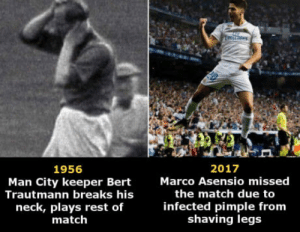 Old footballers vs. modern superstars: ares  2017  Marco Asensio missed  1956  Man City keeper Bert  Trautmann breaks his  neck, plays rest of  match  the match due to  infected pimple from  shaving legs Old footballers vs. modern superstars