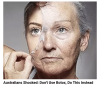 just peel off your face you'll be fine: Australians Shocked: Don't Use Botox, Do This Instead just peel off your face you'll be fine