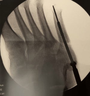 I had surgery to implant a screw in my foot today for a broken bone. I was kind of shocked to see just how long the screw is!: Auto  32  0.081 I had surgery to implant a screw in my foot today for a broken bone. I was kind of shocked to see just how long the screw is!