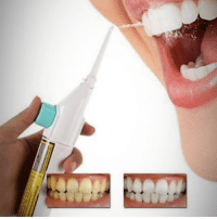 awesomage:POWER FLOSS - DENTAL WATER CLEANERIdeal for braces, crowns, sensitive gums  plaque removingFree Shipping For US, UK, Germany  Australia: awesomage:POWER FLOSS - DENTAL WATER CLEANERIdeal for braces, crowns, sensitive gums  plaque removingFree Shipping For US, UK, Germany  Australia