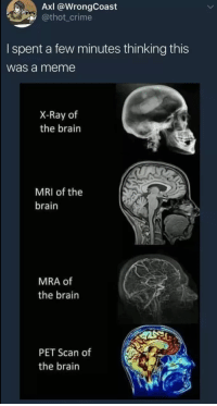 mri: AxI @WrongCoast  @thot_crime  I spent a few minutes thinking this  was a meme  X-Ray of  the brain  MRI of the  brain  MRA of  the brain  PET Scan of  the brain