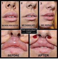 Bad, Beautiful, and Memes: BAD WORK FROM ANOTHER  WE DISSOLVED  THE CONSULTANT  CLINIC  BEFORE  WE REFILLED  AFTER Many of you ask why we don't put more than 1.5ml in during one sitting, and why we build and sculpt the lips in layers, and densities. Our photos illustrate how an inexperienced nurse, injected filler so poorly (1) into this beautiful patient's lips, that we had to reverse it entirely by dissolving it all (2). The patient had so many ml injected so superficially, that her lip tissue had been stretched and distorted so as never to be the same again. We ensure this cannot happen with our methods of injecting - because it's done slowly, methodically, and painstakingly carefully (3). Softly, softly catch the monkey! The odd lump and bump under the lip is normal - and merely filler exaggerating pre-existing mucoceles. However this patient had them everywhere, and even the overall colour of her lips had changed to a blue- transparent tinge. Remember, good work is never cheap and cheap work is never good. We refilled her lips with 3ml of filler, which we would never normally do - but her lips had been grossly overstretched and as such, any less wouldn't have been visible. This costs 💳 £320 per ml in the northern clinics and £385 in 📍 London and Dublin. ✏️ Note : Individual results may vary according to metabolic rate and lifestyle factors. 💣 Treatment should be carried out by an experienced practitioner. 📬 email : info@consultantclinic.com 💳 Initial consultation : £40 north-£60 London& Eire - but redeemed against treatment on the day. To book into one of our doctors only clinics in London's Harley Street, Liverpool's Rodney Street, Newcastle's Osborne Avenue, Greater Manchester and Dublin in Ireland - email us at info@consultantclinic.com but please be aware that there is often a small waiting list during the current peak season and limited availability. perfectlips rodneystreet preston lancashire harleystreet London consultantclinic doctorsonlyclinic liverpool newcastle jesmond correction perfectha naturallooking consultantclinic doctorsonlyclinic