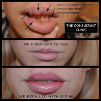 "An inexperienced nurse, injected filler so poorly into this patient's lips, that we had to reverse it entirely by dissolving it all and allowing it to settle. Never compromise on your own face and the identity you present to the world? It's far more expensive and upsetting to have to correct the face than get the treatment administered properly the first time around? You can see the bluish tinge in the top photo, through the skin of the upper lip. This is when the filler has been injected badly and is too superficial - known as the ""Tyndall effect"". So, we worked over several sittings to give her the most gorgeous pair of lips. The practitioner had overfilled the top lip and placed the injections in the wrong depth and unevenly and as you can see - the results were relatively disastrous. She had odd pockets of lumpy filler all over her lips and creating not only an ugly ridge above her mouth, but an uncomfortable one within it. Some of the injections were so superficial within the upper lip, that the skin appears translucent and unnatural. The end result detracts from her beauty, rather than enhance her as intended. So how did we do it? 👀We dissolved her filler carefully💉💉💉 using several painless injections of a dissolving enzyme. We waited a little time⏰⏰ for this to leave the body and set about refilling the lips. This time using considerable skill, and patience.... sculpting the lips prettily to smooth them out and create a natural but glamorous look we think she looks stunning, and she was genuinely thrilled with the results, and brimming with newfound confidence. To book into one of our clinics in London's Harley Street, Newcastle's Osborne Avenue, Greater Manchester, Liverpool's Rodney Street, Dublin in Ireland or Birmingham - email us at info@consultantclinic.com but please be aware that there is a small waiting list owing to demand. perfectlips perfectha lipaugmentation lipfiller dermalfillers juvedermsmile doctorsonlyclinic consultantclinic London harleystreet Liverpool rodneystreet lancashire lipfillers lipaugmentation lipcorrection manchester correction lipcorrection aestheticscorrections botched botchedlips: BADLY PLACED FILLER  FROM ANOTHER  PRACTITIONER  THE CONSULTANT  CLINIC  WE DISSOLVED TO THIS  WE REFILLED WITH 2-3 ML An inexperienced nurse, injected filler so poorly into this patient's lips, that we had to reverse it entirely by dissolving it all and allowing it to settle. Never compromise on your own face and the identity you present to the world? It's far more expensive and upsetting to have to correct the face than get the treatment administered properly the first time around? You can see the bluish tinge in the top photo, through the skin of the upper lip. This is when the filler has been injected badly and is too superficial - known as the ""Tyndall effect"". So, we worked over several sittings to give her the most gorgeous pair of lips. The practitioner had overfilled the top lip and placed the injections in the wrong depth and unevenly and as you can see - the results were relatively disastrous. She had odd pockets of lumpy filler all over her lips and creating not only an ugly ridge above her mouth, but an uncomfortable one within it. Some of the injections were so superficial within the upper lip, that the skin appears translucent and unnatural. The end result detracts from her beauty, rather than enhance her as intended. So how did we do it? 👀We dissolved her filler carefully💉💉💉 using several painless injections of a dissolving enzyme. We waited a little time⏰⏰ for this to leave the body and set about refilling the lips. This time using considerable skill, and patience.... sculpting the lips prettily to smooth them out and create a natural but glamorous look we think she looks stunning, and she was genuinely thrilled with the results, and brimming with newfound confidence. To book into one of our clinics in London's Harley Street, Newcastle's Osborne Avenue, Greater Manchester, Liverpool's Rodney Street, Dublin in Ireland or Birmingham - email us at info@consultantclinic.com but please be aware that there is a small waiting list owing to demand. perfectlips perfectha lipaugmentation lipfiller dermalfillers juvedermsmile doctorsonlyclinic consultantclinic London harleystreet Liverpool rodneystreet lancashire lipfillers lipaugmentation lipcorrection manchester correction lipcorrection aestheticscorrections botched botchedlips"