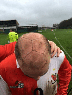 bald man hit in the head by soccer ball: bald man hit in the head by soccer ball