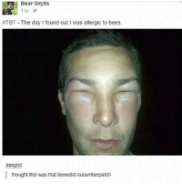 It's BEAR GRYLLS: Bear Grylls  1 hr  #TBT The day found out I was allergic to bees.  assgod  I thought this was that benedict cucumberpatch It's BEAR GRYLLS