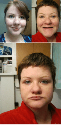 becausedragonage: kingdomheartsddd:  kingdomheartsddd:  christmas-kuchen:  These photos were taken around one year apart.  One year. Can you imagine living your life without teeth?  https://www.gofundme.com/toothless-and-desperate  Have a brief example of what you'd experience: - Unable to eat properly, your health and physical well-being suffers significantly and this shortens your life over time.  If you're like me and have weak jaws, you'll likely not be able to chew well; you're going to be swallowing lumps of things, which is uncomfortable, gross, and unhealthy. -Eating can be very painful, to the point you're going to be eating soup, mashed potatoes, or cream of wheat for at least a few meals. -Self-confidence tanks, and so can your mental health; this has really f*cked me up, leaving me intensely depressed to the point where I've pretty much cried for entire days, not to mention trying to adjust to this nightmare that has become my life. - Dentures generally need to be pasted into your mouth (the paste doesn't usually last that well, and isn't a fix-all.  It also tastes pretty foul.) and tend to cause anything from mild discomfort to bad pain. - You don't get to eat anything sticky, chewy, etc.; no more toffee, gum, unprocessed meat, salad (yes, even things like lettuce and spinach are VERY difficult to eat.  And, forget fresh fruit and veggies.  Too firm, - No biting with your front teeth.   - There is no real 'resting place' for your lower jaw - it's uncomfortable and even painful to have your gums pressed together, and letting your lower jaw relax and 'hang' is almost as bad. - Have you heard someone speak without teeth?  You're liable to repeat things A LOT and feel self-conscious and stupid. -People will shun you, or give you repulsed looks. -Try looking for work when you look like I do, all gums and no teeth.  No way you're getting an interview or a call back.  https://www.gofundme.com/toothless-and-desperate  Not to mention that your JAWS SHRINK and make it even more difficult to eat/speak and are prone to FRACTURING.  That's why I am on my knees, begging and praying for the donations I so desperately need to replace my teeth with implants. Implants act like REAL TEETH and I could eat/speak as before and my jaws would stop shrinking.  But, I live in poverty and am disabled.  I can't afford it alone.  I'm scared this is going to be the end of me. https://www.gofundme.com/toothless-and-desperate  $275 of $29,160 goal  Wow! Two hours after I reblogged this and  $2,287 of $29,160 goal !!!  From the Gofundme link:   *My goal was updated after getting the written estimate from my denturist*    $24,050 of $32,130 goal She's almost there! : becausedragonage: kingdomheartsddd:  kingdomheartsddd:  christmas-kuchen:  These photos were taken around one year apart.  One year. Can you imagine living your life without teeth?  https://www.gofundme.com/toothless-and-desperate  Have a brief example of what you'd experience: - Unable to eat properly, your health and physical well-being suffers significantly and this shortens your life over time.  If you're like me and have weak jaws, you'll likely not be able to chew well; you're going to be swallowing lumps of things, which is uncomfortable, gross, and unhealthy. -Eating can be very painful, to the point you're going to be eating soup, mashed potatoes, or cream of wheat for at least a few meals. -Self-confidence tanks, and so can your mental health; this has really f*cked me up, leaving me intensely depressed to the point where I've pretty much cried for entire days, not to mention trying to adjust to this nightmare that has become my life. - Dentures generally need to be pasted into your mouth (the paste doesn't usually last that well, and isn't a fix-all.  It also tastes pretty foul.) and tend to cause anything from mild discomfort to bad pain. - You don't get to eat anything sticky, chewy, etc.; no more toffee, gum, unprocessed meat, salad (yes, even things like lettuce and spinach are VERY difficult to eat.  And, forget fresh fruit and veggies.  Too firm, - No biting with your front teeth.   - There is no real 'resting place' for your lower jaw - it's uncomfortable and even painful to have your gums pressed together, and letting your lower jaw relax and 'hang' is almost as bad. - Have you heard someone speak without teeth?  You're liable to repeat things A LOT and feel self-conscious and stupid. -People will shun you, or give you repulsed looks. -Try looking for work when you look like I do, all gums and no teeth.  No way you're getting an interview or a call back.  https://www.gofundme.com/toothless-and-desperate  Not to mention that your JAWS SHRINK and make it even more difficult to eat/speak and are prone to FRACTURING.  That's why I am on my knees, begging and praying for the donations I so desperately need to replace my teeth with implants. Implants act like REAL TEETH and I could eat/speak as before and my jaws would stop shrinking.  But, I live in poverty and am disabled.  I can't afford it alone.  I'm scared this is going to be the end of me. https://www.gofundme.com/toothless-and-desperate  $275 of $29,160 goal  Wow! Two hours after I reblogged this and  $2,287 of $29,160 goal !!!  From the Gofundme link:   *My goal was updated after getting the written estimate from my denturist*    $24,050 of $32,130 goal She's almost there!