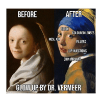 Classical Art, Botox, and Job: BEFORE  AFTER  BOTOX  COLOURED LENSES  NOSE JOB  FILLERS  LIP INJECTIONS  CHIN IMPLANT  GLOW UP BY DR. VERMEER Fleek (@labelle.aventure)