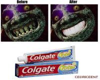 Zelda, Ants, and Fight: Before  After  Colgate  To ta  Whitening  Colgate  Tota  Anticavity Fluoride  and Ant/gingivitis Toothpaste  Whitening Cer  NETW or a TI Fights TartarBuildiplo  山  CEDRICEENT He looks much less threatening now