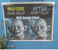 Advertising at its finest.: BEFORE  AFTER  OUR HELP  OUR HELP  DRUL Dental Clinic Advertising at its finest.