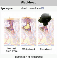 Blessed, Memes, and Good: Blackhead  plural comedones[1]  Synonyms  Normal  Whitehead  Blackhead  Skin Pore  Illustration of blackhead thankfully I was blessed with good complexion I would hate to get these things....🍩c