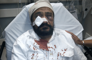 "blackmagicalgirlmisandry:  kaagazkalam:  This is Inderjit Singh Mukker, a Sikh man from Chicago who was brutally assaulted on September 8, 2015. On his way home from the grocery store, his car was tailgated by another. When Inderjit Singh pulled over, the driver of the car behind him came out and began punching Inderjit Singh in the face repeatedly while yelling ""go back to your country, terrorist… Bin Laden,"" and this continued until he lost consciousness. 14 years after 9-11 our beards and turbans still make us an open target for hatred. Sardaar and hijabi brothers and sister, please be on the lookout and stay safe.  top knots and beards are fashion trends but treating brown people as human beings still isn't even accepted  : blackmagicalgirlmisandry:  kaagazkalam:  This is Inderjit Singh Mukker, a Sikh man from Chicago who was brutally assaulted on September 8, 2015. On his way home from the grocery store, his car was tailgated by another. When Inderjit Singh pulled over, the driver of the car behind him came out and began punching Inderjit Singh in the face repeatedly while yelling ""go back to your country, terrorist… Bin Laden,"" and this continued until he lost consciousness. 14 years after 9-11 our beards and turbans still make us an open target for hatred. Sardaar and hijabi brothers and sister, please be on the lookout and stay safe.  top knots and beards are fashion trends but treating brown people as human beings still isn't even accepted"