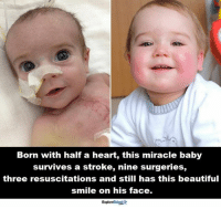 Memes, Cheerfulness, and Miracles: Born with half a heart, this miracle baby  survives a stroke, nine surgeries,  three resuscitations and still has this beautiful  smile on his face.  ExploreTalentAr Cheers to a long healthy life, little angel <3