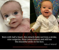 Memes, Miracles, and 🤖: Born with half a heart, this miracle baby survives a stroke,  nine surgeries, three resuscitations and still has  this beautiful smile on his face.  Weird World