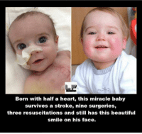 Memes, Miracles, and 🤖: Born with half a heart, this miracle baby  survives a stroke, nine surgeries,  three resuscitations and still has this beautiful  smile on his face.