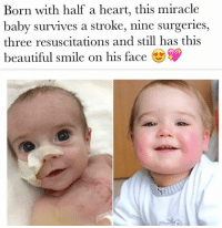 Baby, It's Cold Outside, Beautiful, and Dank: Born with half a heart, this miracle  baby survives a stroke, nine surgeries,  three resuscitations and still has this  beautiful smile on his face ❤️