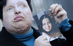 bundyspooks:  When Ameneh Bahrami rejected a man's marriage proposal, he turned bitter and threw acid into her face leaving her with extreme disfigurements. She went through 19 agonising operations and is permanently blind, but this didn't stop her wanting justice on the man who ruined her life. In court, the judge wanted the accused to serve a lengthy prison sentence and pay full compensation to Ameneh, but she had different ideas: She asked if she could have exact revenge, by injecting acid into the man's eyes. The court allowed it as a capital punishment, and arrangements were made for Ameneh to inject 20 drops of acid into her attacker's eyes to blind him. : bundyspooks:  When Ameneh Bahrami rejected a man's marriage proposal, he turned bitter and threw acid into her face leaving her with extreme disfigurements. She went through 19 agonising operations and is permanently blind, but this didn't stop her wanting justice on the man who ruined her life. In court, the judge wanted the accused to serve a lengthy prison sentence and pay full compensation to Ameneh, but she had different ideas: She asked if she could have exact revenge, by injecting acid into the man's eyes. The court allowed it as a capital punishment, and arrangements were made for Ameneh to inject 20 drops of acid into her attacker's eyes to blind him.