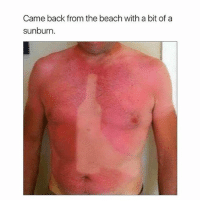 Ok me.: Came back from the beach with a bit of a  sunburn. Ok me.