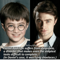 Daniel Radcliffe, Memes, and 🤖: Cau  Potter  Daniel Radcliffe suffers from dyspraxia,  a disorder that makes even the simplest  tasks difficult to complete.  (In Daniel's case, it was tying shoelaces.) Daniel before or after? 💗 Comment '😍' if you knew this fact and '😮' if you didn't. • Potterheads⚡count: 101,328