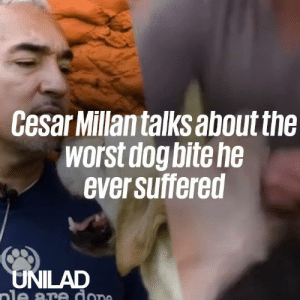 Cesar Millan relives the day he received the worst dog bite of his career. What happened next is incredible ❤️️: Cesar Millantalks about the  worst dog bite he  ever suffered  UNILAD  ale are dope Cesar Millan relives the day he received the worst dog bite of his career. What happened next is incredible ❤️️