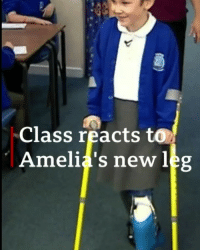 "Friends, Memes, and School: Class reacts to  Amelia's new leg Amelia Eldred says her friends are ""amazing."" The 8-year-old from Tamworth, Staffordshire, had her left leg amputated last year after being diagnosed with bone cancer. But look at the reaction from her classmates when she walked into school on her prosthetic leg for the first time. Amelia had a rare procedure called rotationplasty to reattach the lower part of her leg backwards so she could have a prosthetic fitted. prostheticleg grouphug brave instagood bbcnews"