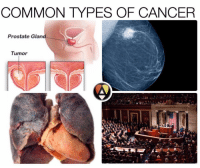 Congress is Cancer: COMMON TYPES OF CANCER  Prostate Glan  Tumor Congress is Cancer