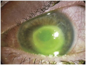 Contact lens infection: Contact lens infection