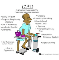 """Tag a friend below! RN LPN NurseHumor CNA NAC College RNstudent SchoolHumor student NursingSchool FutureNurse Nurse Studying: COPD  CHRONICAIRFLOW LIMITATION  """"EMPHYSEMA AND CHRONIC BRONCHITIS  Wheezing  Easily Fatigued  Pursed-Lip Breathing  Frequent Respiratory  Chronic Cough  Infections  Barrel Chest  Use of Accessory  Dyspnea  Muscles to Breathe  Prolonged Expiratory  Orthopneic  Time  Bronchitis  Increased Sputum  Cor Pulmonale  Digital Clubbing  (Late in Disease)  Thin in  Appearance Tag a friend below! RN LPN NurseHumor CNA NAC College RNstudent SchoolHumor student NursingSchool FutureNurse Nurse Studying"""