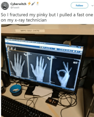 Meirl: Cyberwitch  @Foosili  Follow  So l fractured my pinky but I pulled a fast one  on my X-ray technician  MPD 552- 247O Meirl