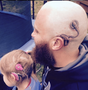 Dad got a cochlear implant tattoo in support of his hearing-impaired daughter.: Dad got a cochlear implant tattoo in support of his hearing-impaired daughter.