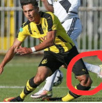 Dario scuderi under 19 dortmund player might be forced to retire from football because of this sever knee injury. Lets hope for a good recovery stay strong ! ❤️: Dario scuderi under 19 dortmund player might be forced to retire from football because of this sever knee injury. Lets hope for a good recovery stay strong ! ❤️