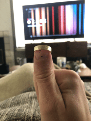 Day 16 of Quarantine: My thumb is king of fingers, for he wears the crown: Day 16 of Quarantine: My thumb is king of fingers, for he wears the crown