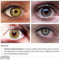 Bored, Jealous, and Memes: dee-lirium  Central heterochromia is an eye condition where there are two colors i  the same iris, the central (pupillary) zone of the iris is a different color tha  the mid-peripheral (ciliary) zone. my sister has this and I'm so jealous my eyes are light blue and very boring